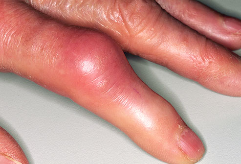 can heel pain be gout can heel pain be gout treatment for gout magnesium